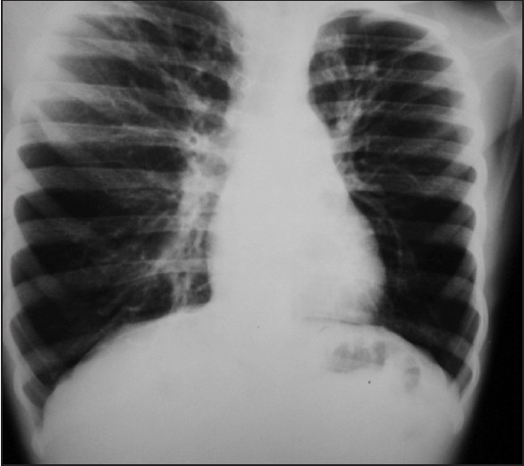 Figure 1: Chest X-ray PA view taken a year later showing increasing opacities in both lung fields