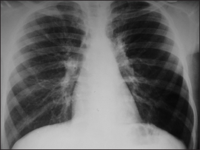 Figure 2: Chest X-ray PA view taken in 2011 showing prominent perihaliar shadows