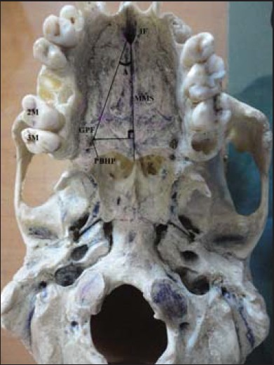 Figure 1: Hard palate. IF – Incisive foramen; GPF – Greater palatine foramen; MMS – Midline maxillary suture; PBHD – Posterior border of hard palate; M2 – Maxillary second molar; M3 – Maxillary third molar; A – Angle between the MMS and the line from the IF and the GPF