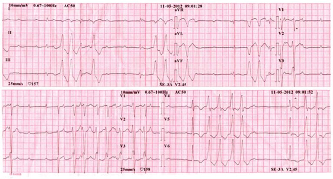 Figure 1: Electrocardiogram showing complete AV block and non-sustained VT