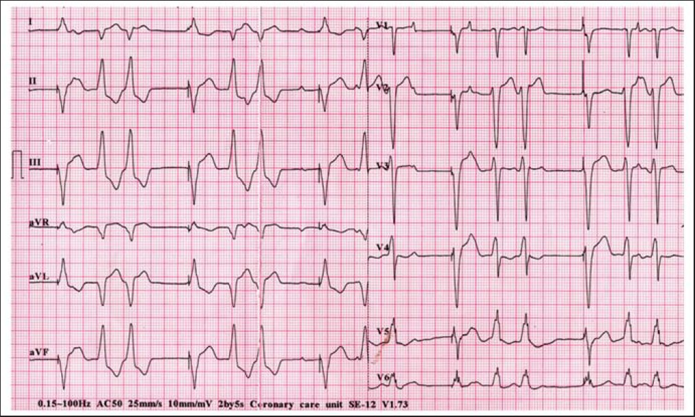Figure 2: Electrocardiogram showing ventricular paced beats with ventricular premature contractions in couplets
