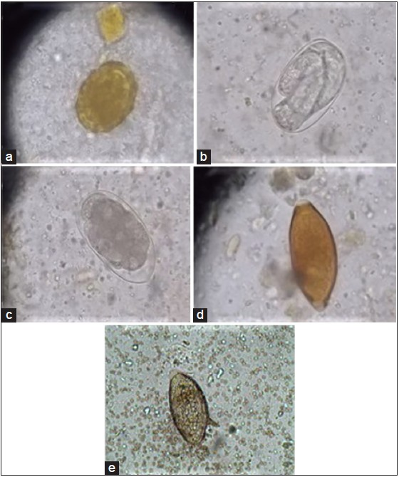 The prevalence of intestinal parasitic infections among foreign