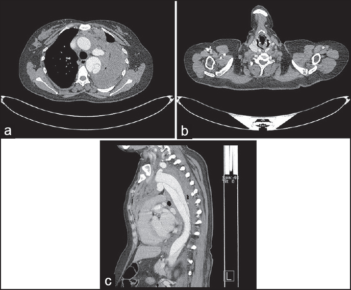 Figure 1: Axial contrast CT. Thorax study showed dissection of the arch and descending aorta extending inferiorly up to the abdominal aorta with left hemothorax and hemomediastinum and collapse of the underlying lung (a and b). Contrast opacifi ed outpouching arising from the inferior arch of the aorta and opposite to subclavian origin (c)