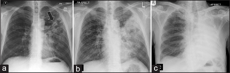 Figure 1: Acute pulmonary melioidosis. Chest X-ray at initial presentation (a) Left upper lobe infiltrate (arrow). Two days later there is interval increase with larger infiltrate. (b) Follow-up X-ray. (c) A week later shows complete opacification of the left hemithorax denoting complete involvement of the left lung.