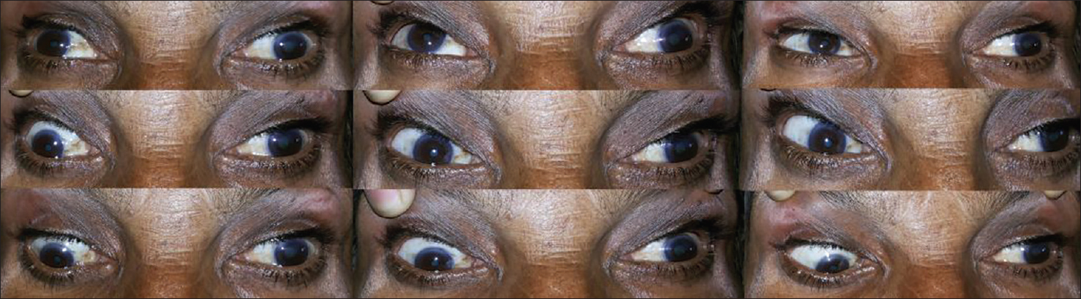Figure 1: Bilateral incomplete ophthalmoplegia (right>left )