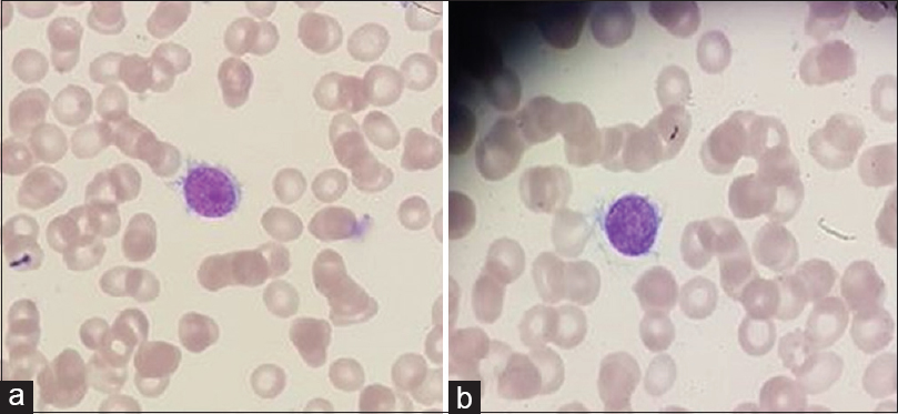 Figure 1: (a and b) Peripheral blood smear showing an atypical cell with multiple cytoplasmic projections