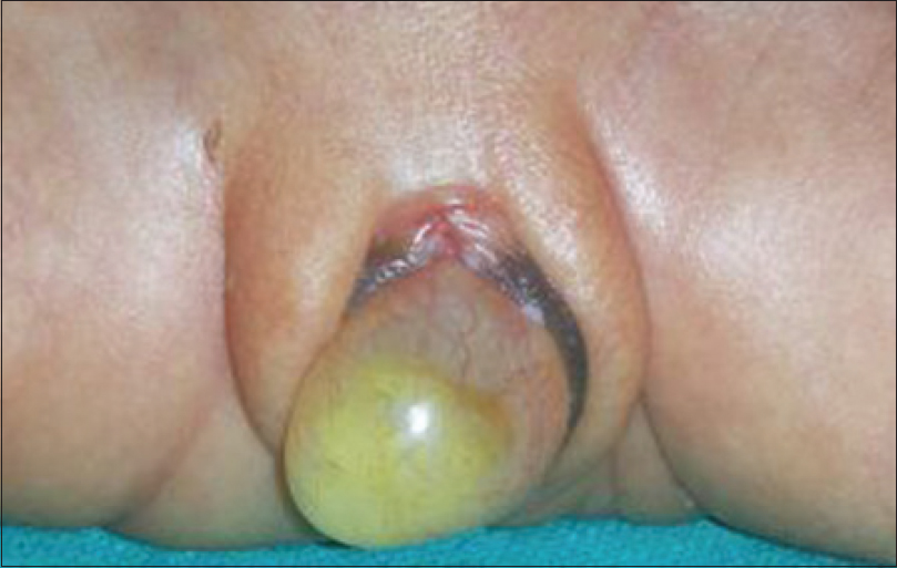 Figure 1: Huge hydrocolpos due to an imperforate hymen