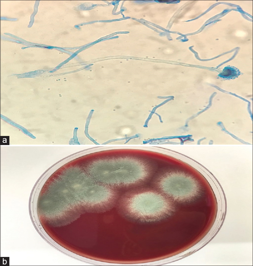 Figure 3: (a) A microscopic view of the pericardial tissue showing <i>Aspergillus</i>; (b) Culture of the pericardial tissue showing <i>Aspergillus</i>