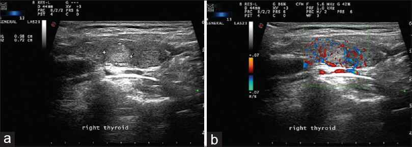 Figure 3: (a) Grayscale ultrasound image of the right thyroid lobe showing a well-defined echogenic lesion with distal acoustic enhancement. (b) The contour of the lesion is regular with a peripheral anechoic halo and shows hypervascularity on Doppler imaging. These features are consistent with a malignant thyroid lesion. Fine-needle aspiration interpretation revealed Bethesda category (6) consistent with papillary thyroid carcinoma