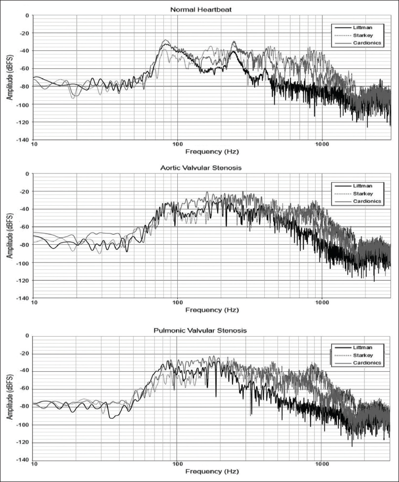 Figure 2: Frequency responses of the three stethoscopes for normal heartbeat (top), aortic valvular stenosis (middle) and pulmonic valvular stenosis (bottom)