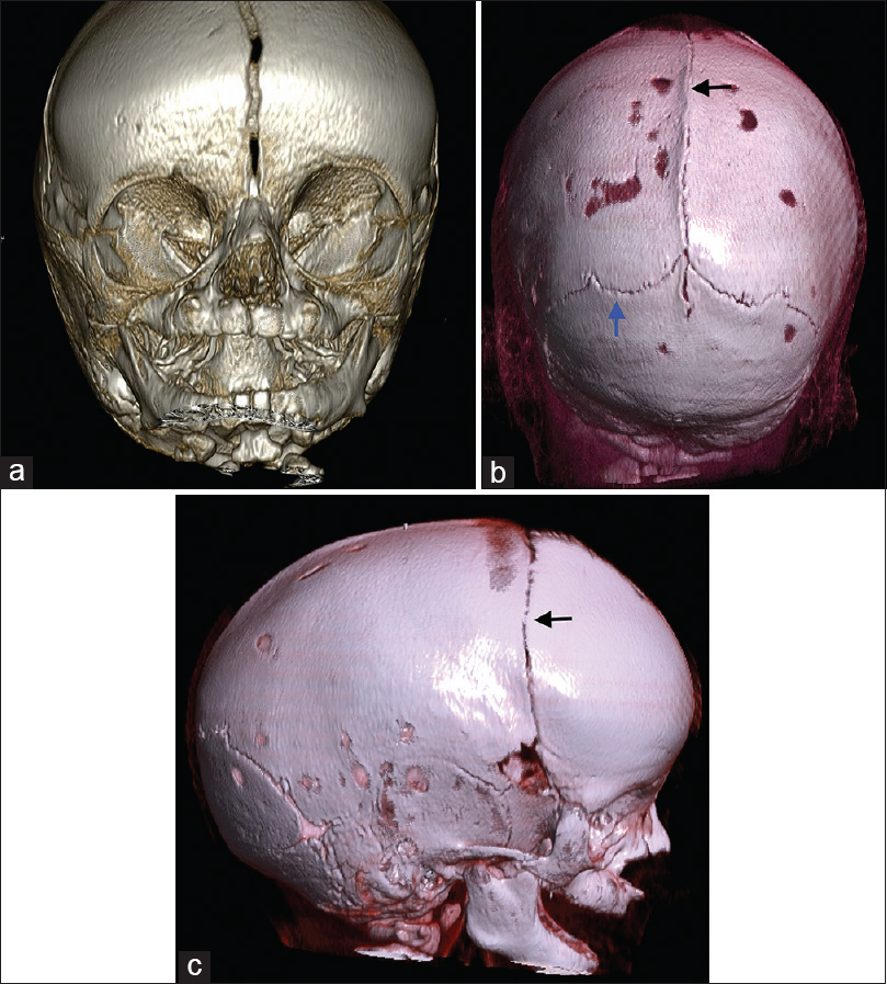 Figure 2: Three-dimensional volume-rendering technique computed tomography image showing (a) fused sagittal sutures; (b) fusion of sagittal suture (black arrow) and decreased space of the lambdoid suture (blue arrow); (c) dolichocephalic head with focal fusion of the right coronal suture (black arrow) and reduced space of rest of the coronal suture
