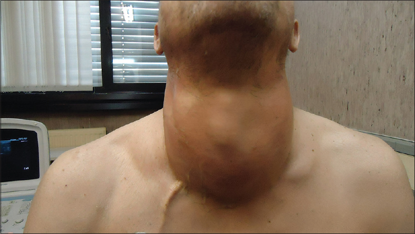 Figure 1: Diffusely enlarged thyroid gland